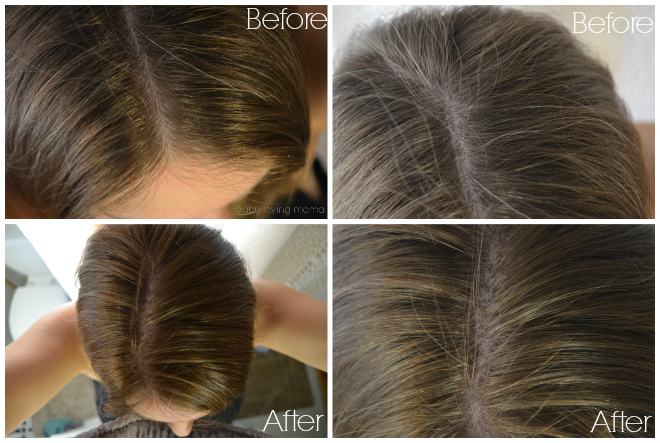 Pampering myself with madison reed natural hair color madison reed before and after covering gray hair solutioingenieria Choice Image